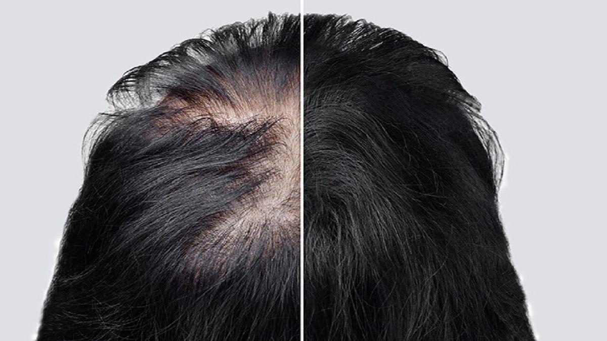 دلایل ریزش مو بهبودیافتگان از کرونا